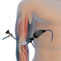 Elbow Arthroscopy