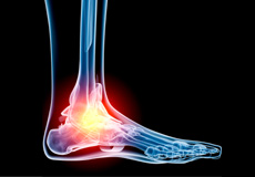 Foot and Ankle Trauma