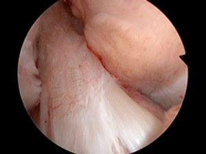 Normal Anterior Cruciate Ligament