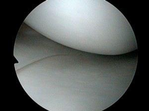 Normal meniscus and articular cartilage