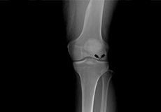 Osteonecrosis of the Knee
