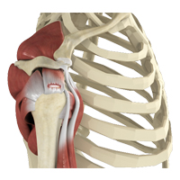 Shoulder Rotator Cuff Tear